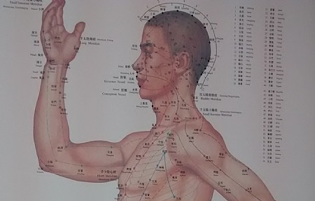 דיקור סיני לטיפול בכאבי כתף