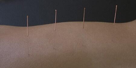 דיקור סיני (אקופונקטורה) מומלץ לטיפול בכאבי מפרק הברך והירך
