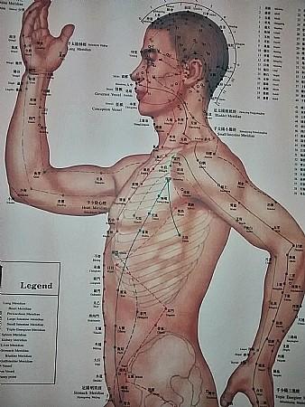 דיקור סיני (אקופונקטורה) לכאבי גב